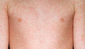 measles-torso_300x174_M2100364