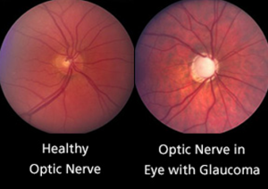 glaucoma-300x212