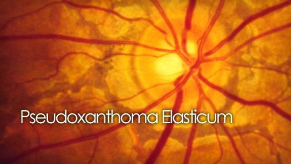 PXE retina